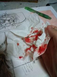 鼻血まみれのティッシュ